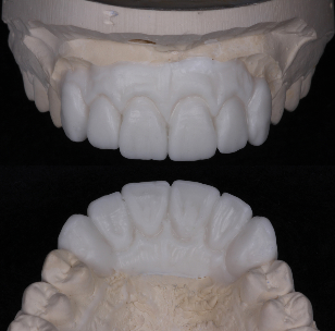 Sample of diagnostic wax up for implant prosthesis by paul gerrard