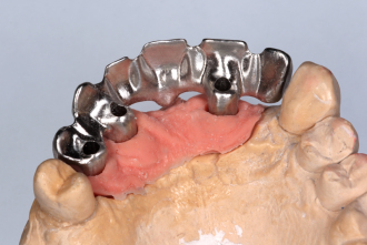 Implant substructure for 6 unit bridge