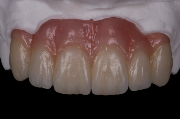 Sample implant case with ceramic tissue for ridge defect