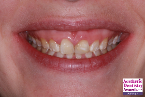 Before smile makeover with gummy smile and discoloured teeth