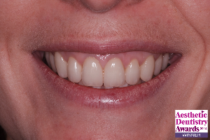 After surgical crown lengthening and replacement of teeth with crowns and veneers